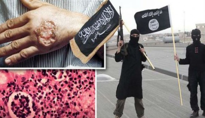 ISIS-Flesh-Eating-Disease