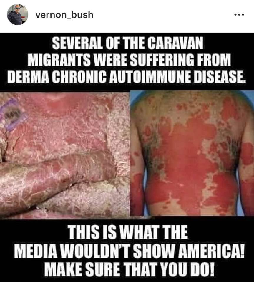 derma-chronic-autoimmune-disease-migrant