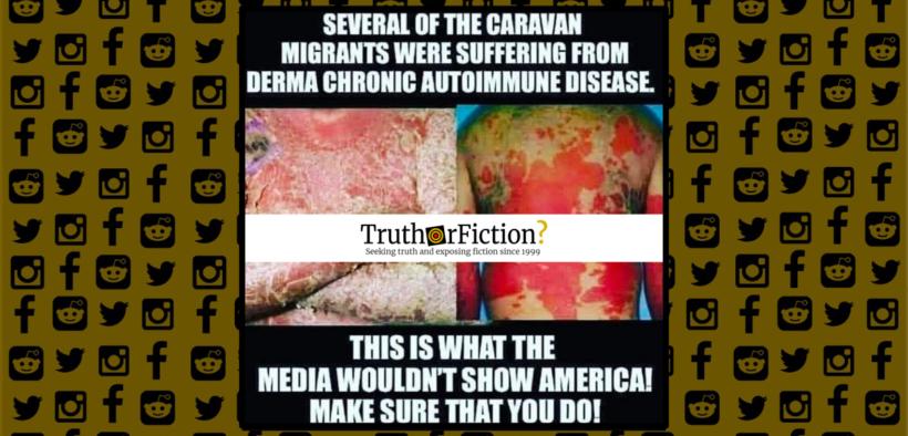 derma_chronic_autoimmune_disease