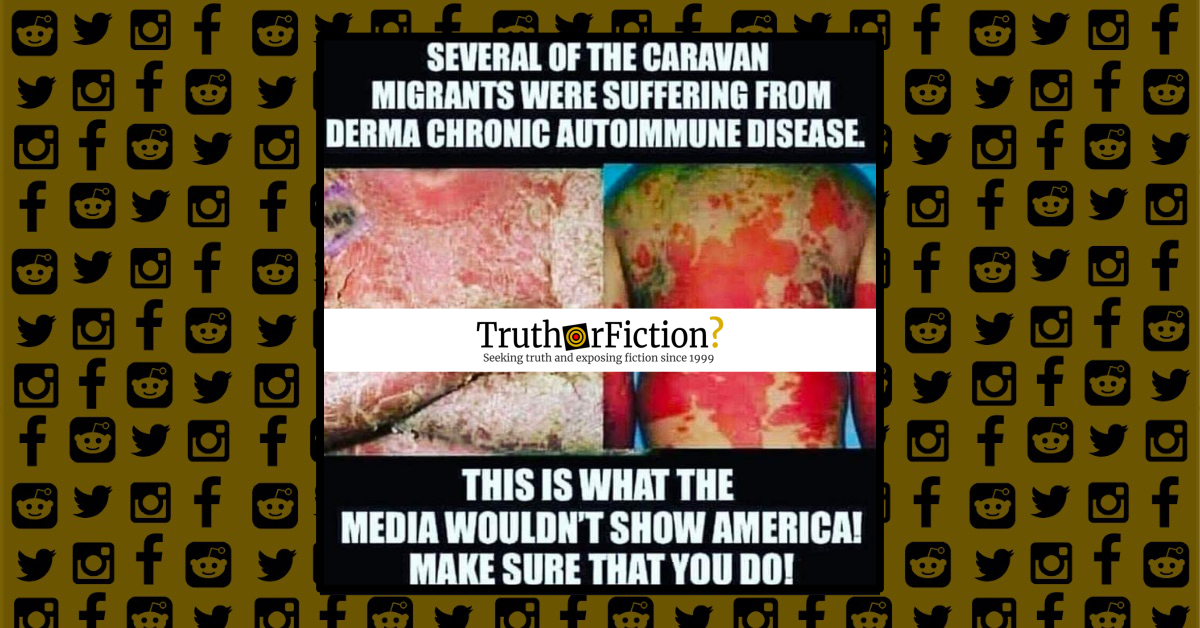 Derma Chronic Autoimmune Disease