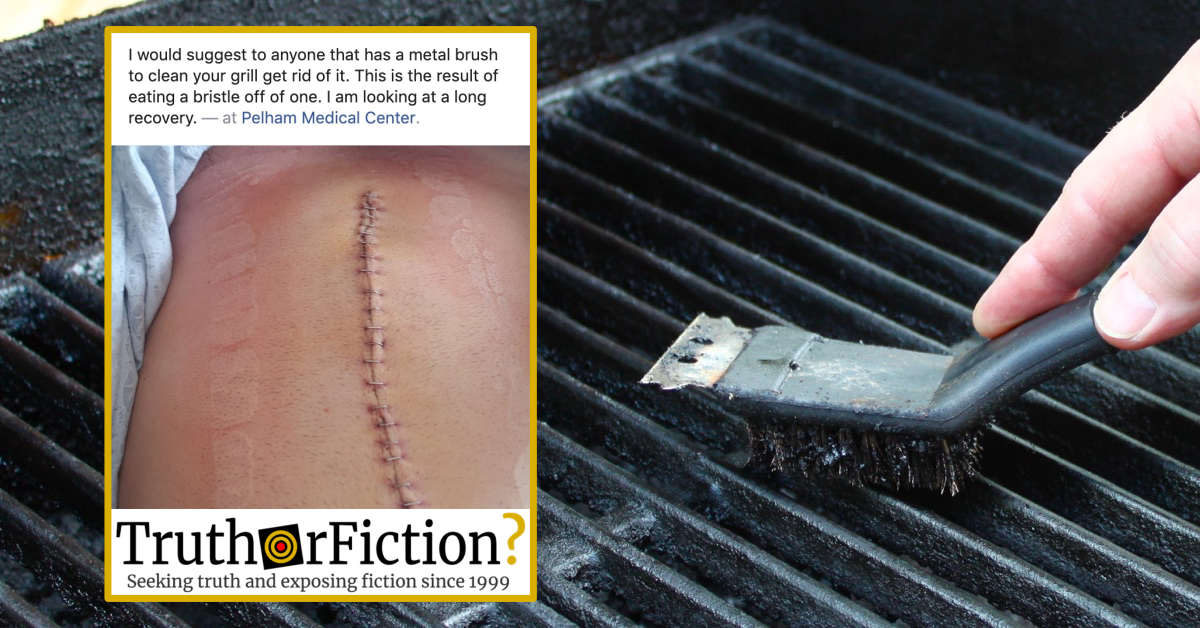Can Grill Brushes Cause You to Ingest Metal and Become Ill?