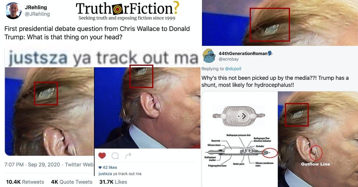 'Trump's Head' Photograph
